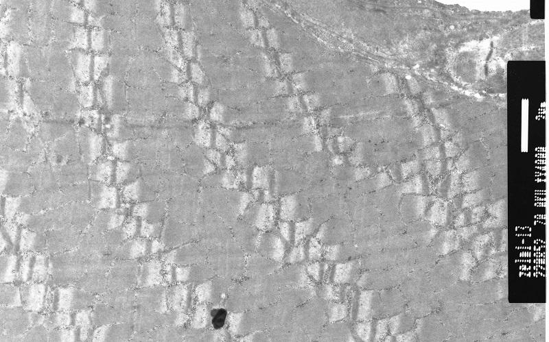срез мышцы электронная микроскопия копия